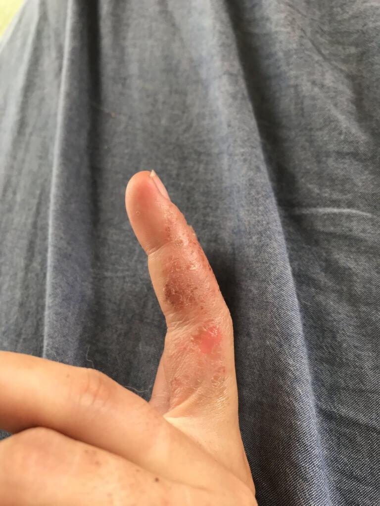 20180815 右手の小指も悪化