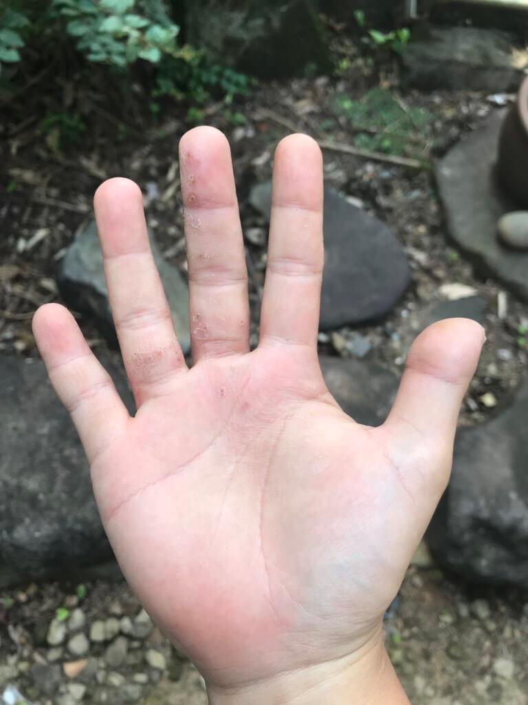20180712 指だけに出てる(右手)