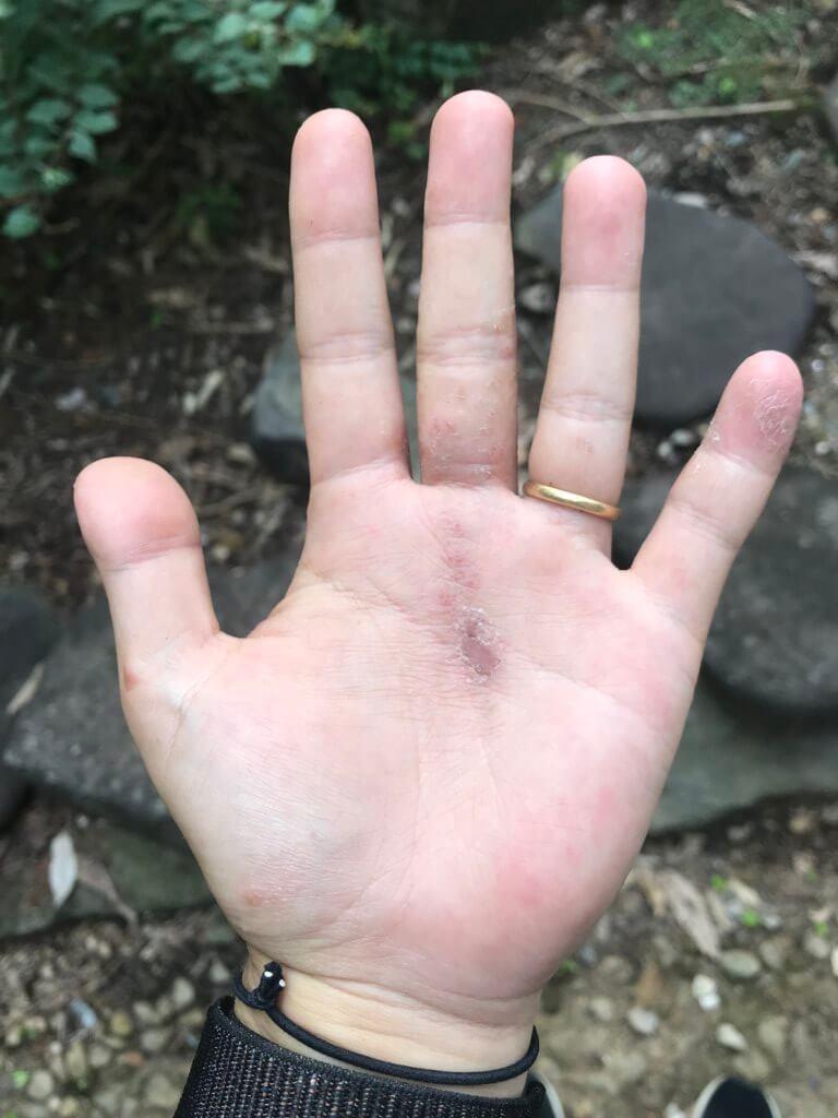 20180712 手のひらと小指に出始めました。(左手)