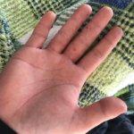掌蹠膿疱症 画像