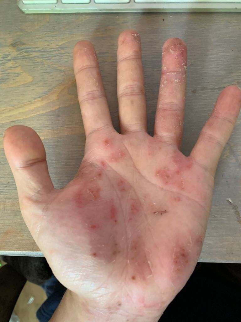 掌蹠膿疱症 2020年5月 左手