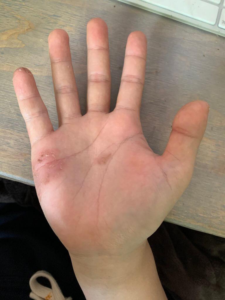 掌蹠膿疱症 2020年5月 右手